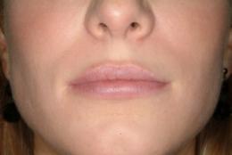 Po powiększeniu ust